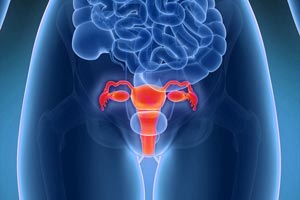 Power-Morcellator-Lawsuit-Uterine-Cancer