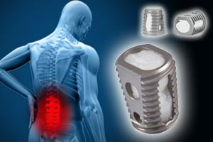 medtronic-infuse-lawsuit