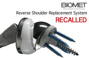Biomet-Shoulder-Recall-Lawsuit